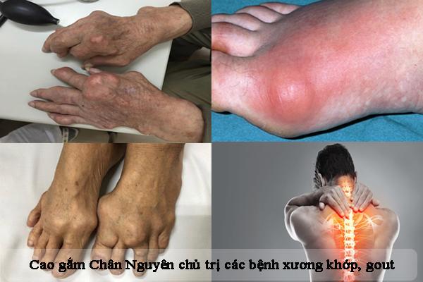 Cao gắm Chân Nguyên chủ trị gout, bệnh xương khớp hiệu quả