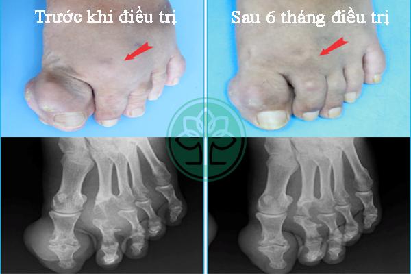 Kết quả trị gout mãn tĩnh sau 6 tháng điều trị