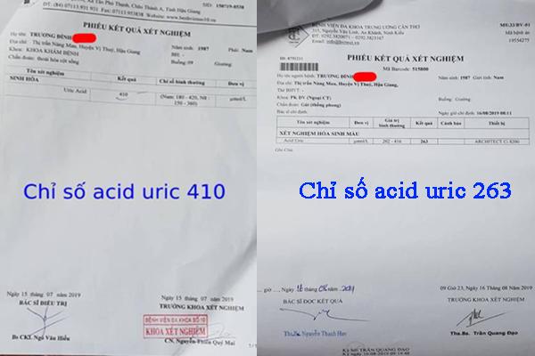 Chỉ số acid uric được đưa về mức an toàn khi sử dụng cao gắm