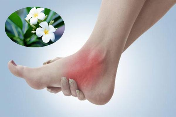 Hoa sứ có tác dụng chữa bong gân