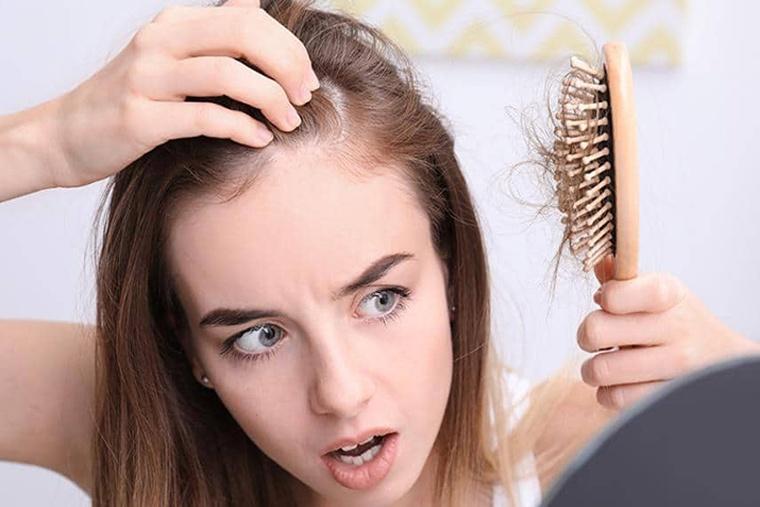 Rụng tóc là bệnh lý thường gặp phổ biến ở chị em phụ nữ