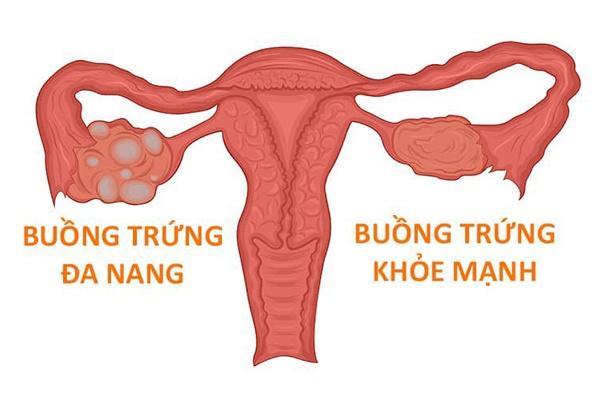 Rụng tóc ở phụ nữ có thể là dấu hiệu của bệnh buồn trứng đa nang