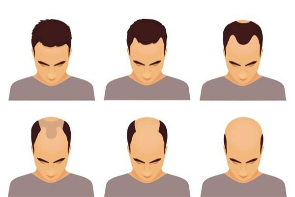 Các dạng hói đầu ở nam giới