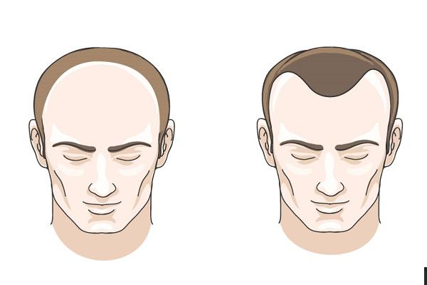Các kiểu rụng tóc ở nam giới