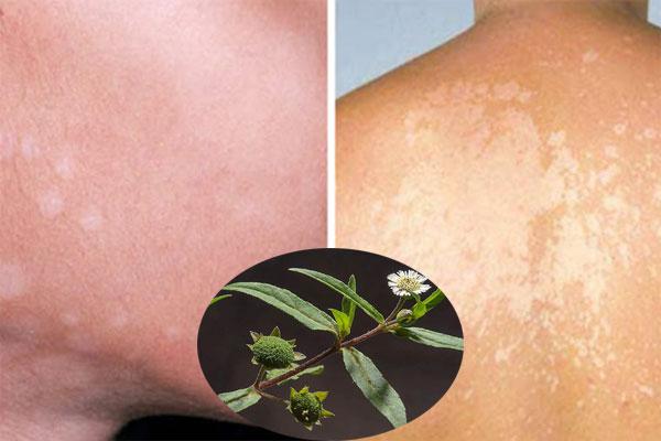 Áp dụng bài thuốc từ cây cỏ mực để điều trị lang ben