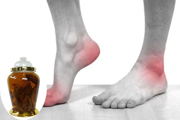 Bài thuốc chữa bệnh gout từ củ bình vôi cực kỳ hiệu quả và tác dụng giảm đau nhanh chóng