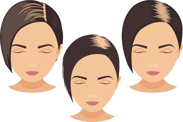 Các dạng hói đầu ở nữ giới