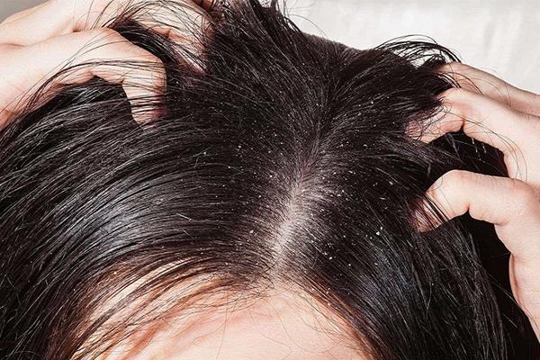 Điều trị triệt để các bệnh về da đầu như vảy nến, nấm da đầu