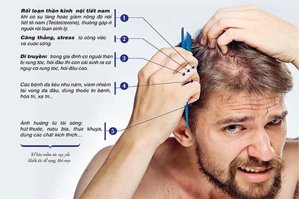 Những nguyên nhân gây ra tình trạng rụng tóc ở nam giới