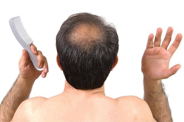 Có nhiều nguyên nhân gây hiện tượng rụng tóc thành từng mãng