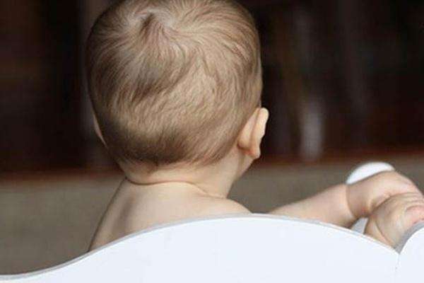 Có nhiều nguyên nhân gây ra tình trạng rụng tóc ở trẻ sơ sinh