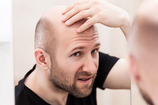 Có nhiều nguyên nhân gây ra hiện tượng rụng tóc