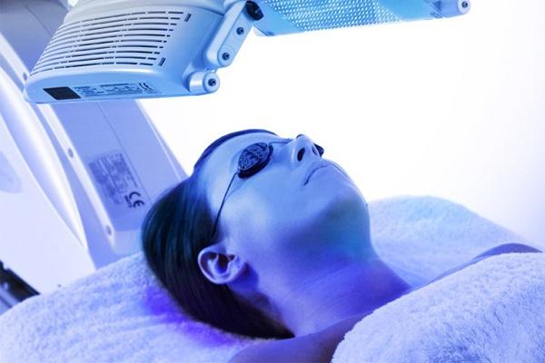Điều trị rụng tóc từng mãng bằng ánh sáng xanh - PUVA