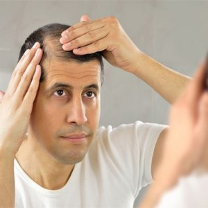 Rụng tóc nhiều ở nam giới