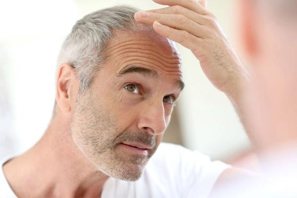 Có nhiều nguyên nhân gây rụng tóc ở nam giới