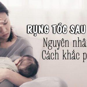 Rụng tóc sau sinh gây mất thẩm mỹ và phiền toái cho các mẹ