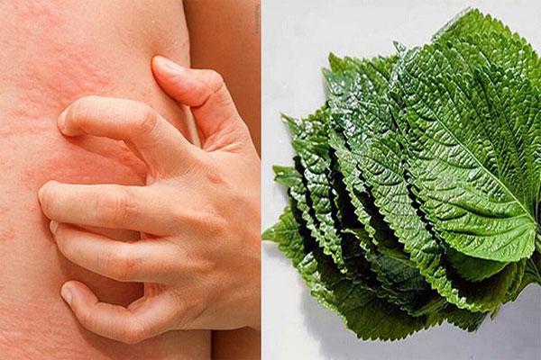 Sử dụng nước cốt dược liệu này để uống và lấy bã lá cây đắp để trị mề đay, mẩn ngứa