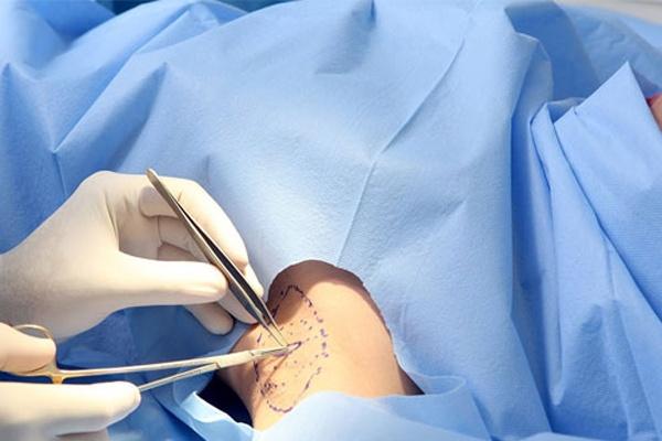 Phẫu thuật bóc tuyến mồ hôi nách với giá thành rẻ được nhiều người ưa chuộng