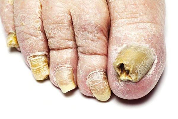 Nấm móng gây ảnh hưởng nhiều đến thẩm mỹ của người bệnh