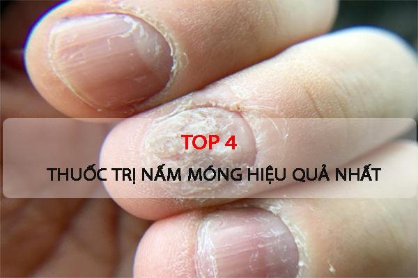 Top 4 thuốc trị nấm móng hiệu quả nhất hiện nay