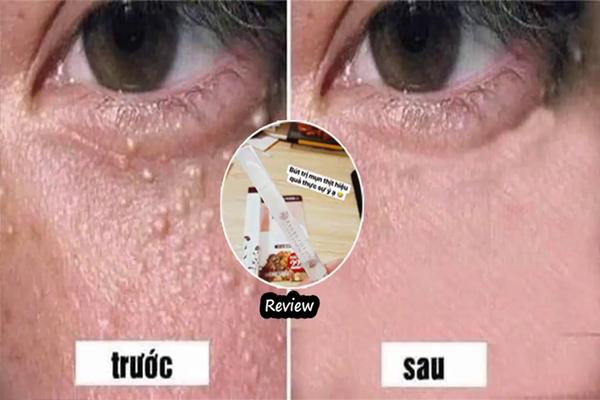 Trước và sau khi sử dụng Tsubuporon trị mụn thịt