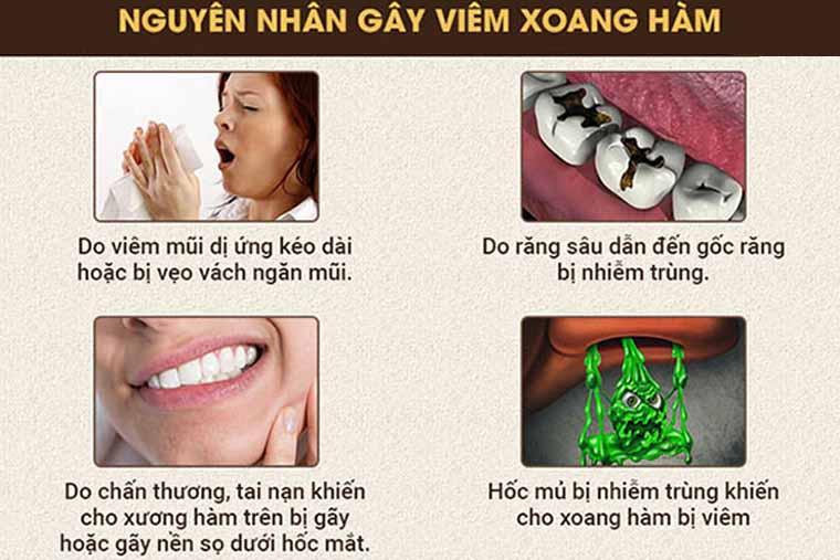 Các nguyên nhân gây viêm xoang thường gặp