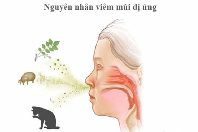 Nguyên nhân gây viêm mũi