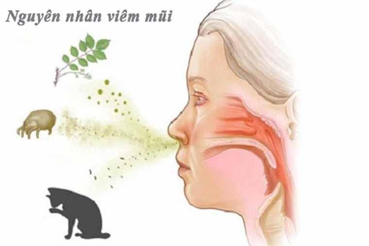 Nguyên nhân viêm mũi vân mạch