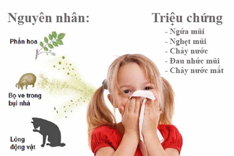 Triệu chứng trẻ bị viêm mũi dị ứng
