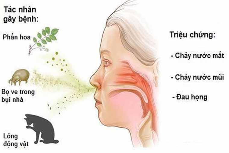 Triệu chứng viêm mũi dị ứng mãn tính