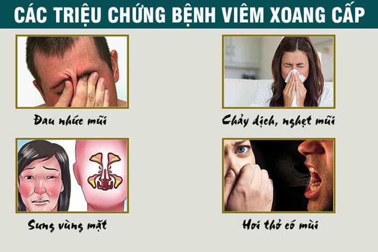 Triệu chứng viêm xoang cấp