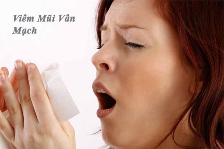 Viêm mũi vân mạch (ảnh minh họa)