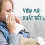 Bệnh viêm mũi xuất tiết là gì? Chữa trị như thế nào