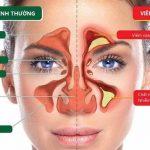 Bệnh viêm xoang mũi là gì? nguyên nhân và cách chữa trị tại nhà
