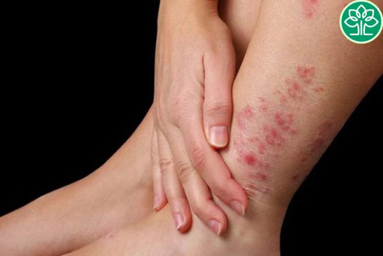 Bệnh viêm da cơ địa cần khám và chữa kịp thời, tránh biến chứng