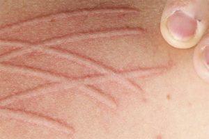 Biểu hiện của bệnh trên da