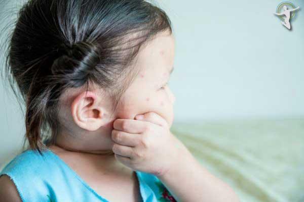 Xác định nguyên nhân gây mề đay dị ứng ở trẻ để chữa trị kịp thời