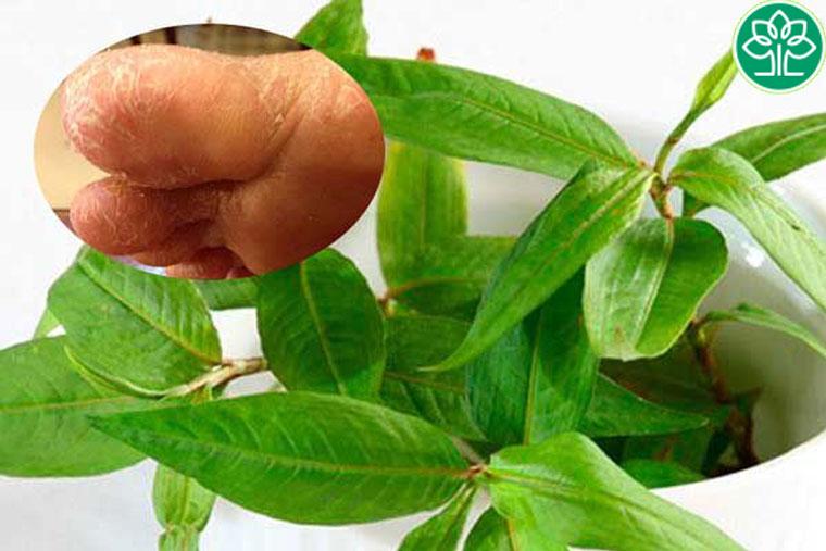 Chữa viêm da cơ địa tại nhà bằng rau răm rất hiệu quả