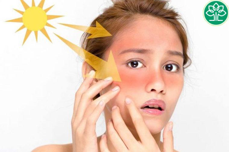 Khi bị viêm da cơ địa cần tránh để làn da tiếp xúc với ánh nắng mặt trời