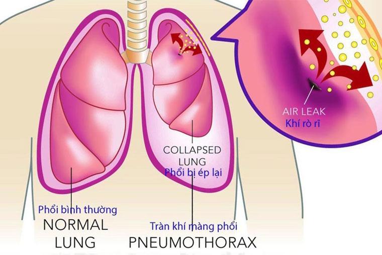 Ho lao có thể gây ra tràn khí màng phổi