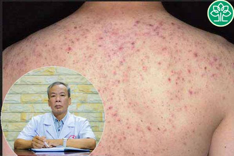 Viêm nang lông cần đi khám trực tiếp mới có thể điều trị dứt điểm được bệnh