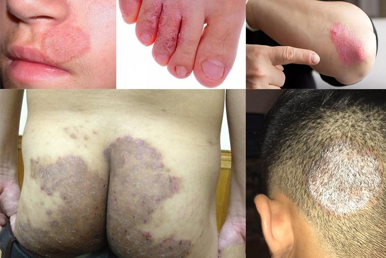 Biểu hiện của bệnh hắc lào tại các bộ phận trên cơ thể