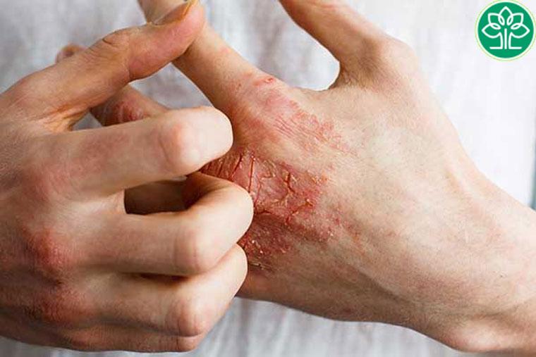 Biểu hiện lâm sàng của viêm da cơ địa mãn tính