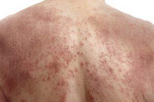 Viêm da cơ địa ở lưng khiến bệnh nhân cảm thấy khó chịu, cần loại bỏ nguyên nhân